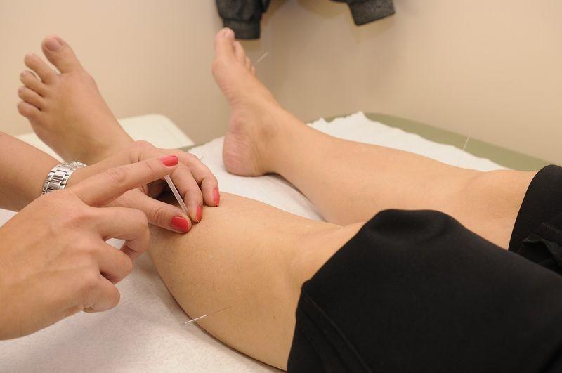Komu na 100% przyda się akupunktura?